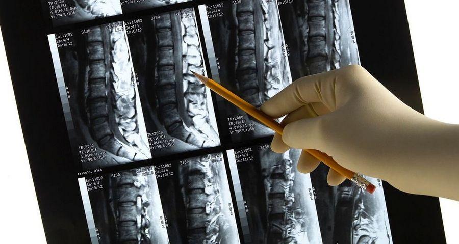МРТ спинного мозга в Москве