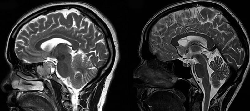 Магнитно-резонансная томография гиппокампа
