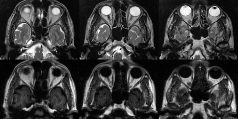 Магнитно-резонансная томография глаза