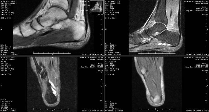Магнитно-резонансная томография голеностопного сустава