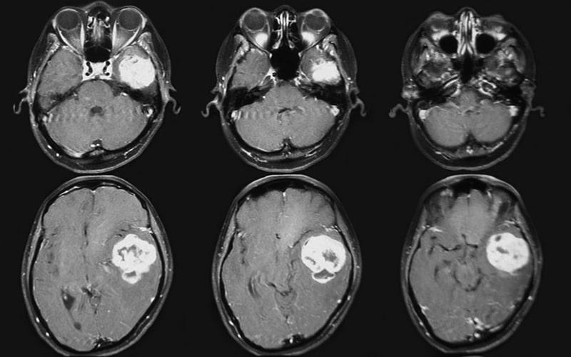 Магнитно-резонансная томография головного мозга с контрастом
