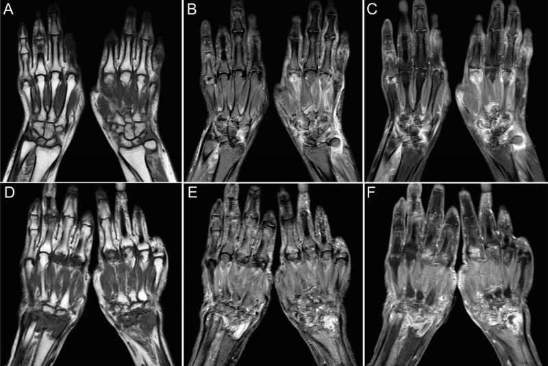 Магнитно-резонансная томография кисти руки