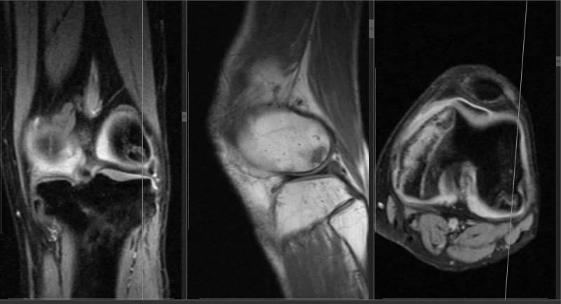 Магнитно-резонансная томография коленного сустава
