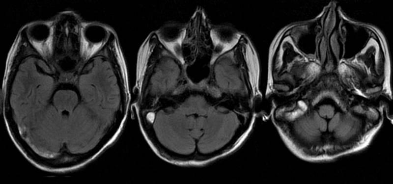 Магнитно-резонансная томография гайморовых пазух