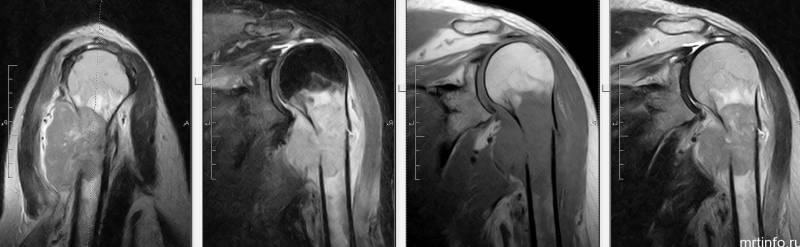 Магнитно-резонансная томография плечевого сустава