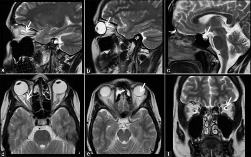 Магнитно-резонансная томография внутреннего уха