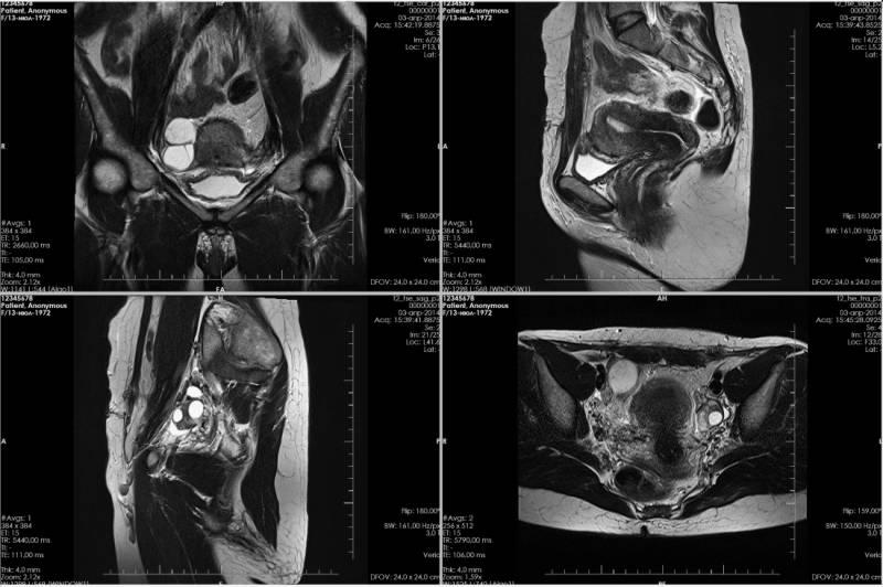 МРТ матки и придатков