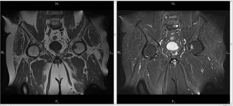 Магнитно-резонансная томография костей таза